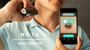 隨行痣檢測器 NOTA Mole Tracker (7月27日寄出) HK$ 3,100